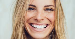 Xoá rãnh cười sâu